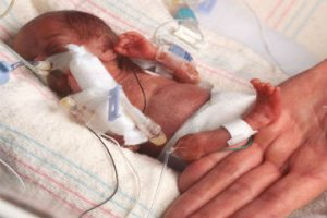 The Worlds smallest baby, weighing 245 grams survives